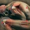 Fibromyalji Nedir? Fibromyalji Tedavisi