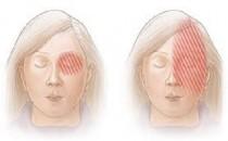 Migrene İyi Gelen Bitkiler