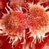 Kanserden korunmak için yapılması gerekenler