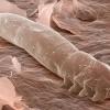 Demodeks paraziti ve tedavisi