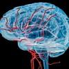 Beyin Damarlarında Daralma Nedenleri, Tedavisi