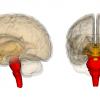 Beyin Sapı Tümörleri Nelerdir?