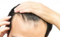Dökülen saçlar tekrar çıkar mı?