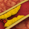 İlaçsız Trigliserit Düşürme