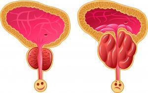 prostat2-kopya