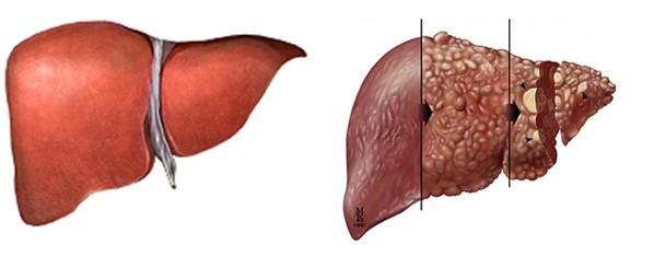 kronik hepatit