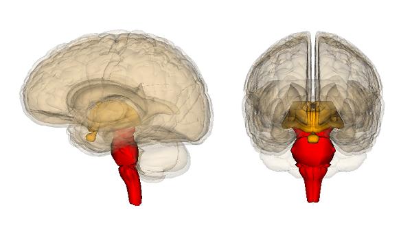 beyin sapı tümörü