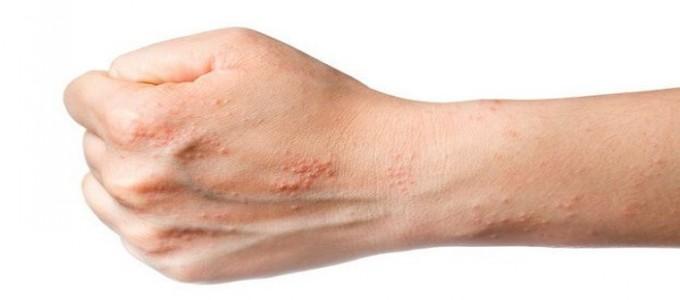 Egzama nedenleri, belirtileri ve tedavisi