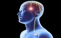 Parkinson Hastalığı Beyin Pili Ameliyatı